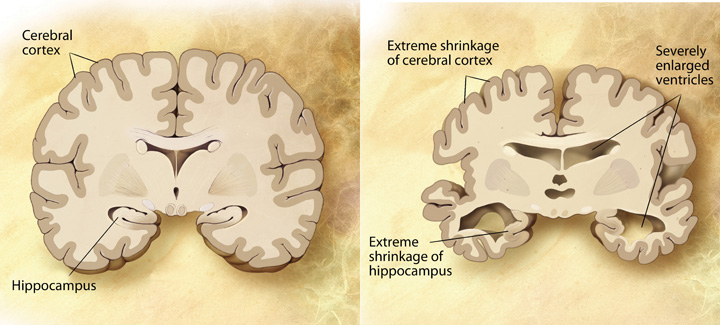 In a brain with Alzheimer's, the cerebral cortex and the hippocampus shrink and ventricles enlarge.