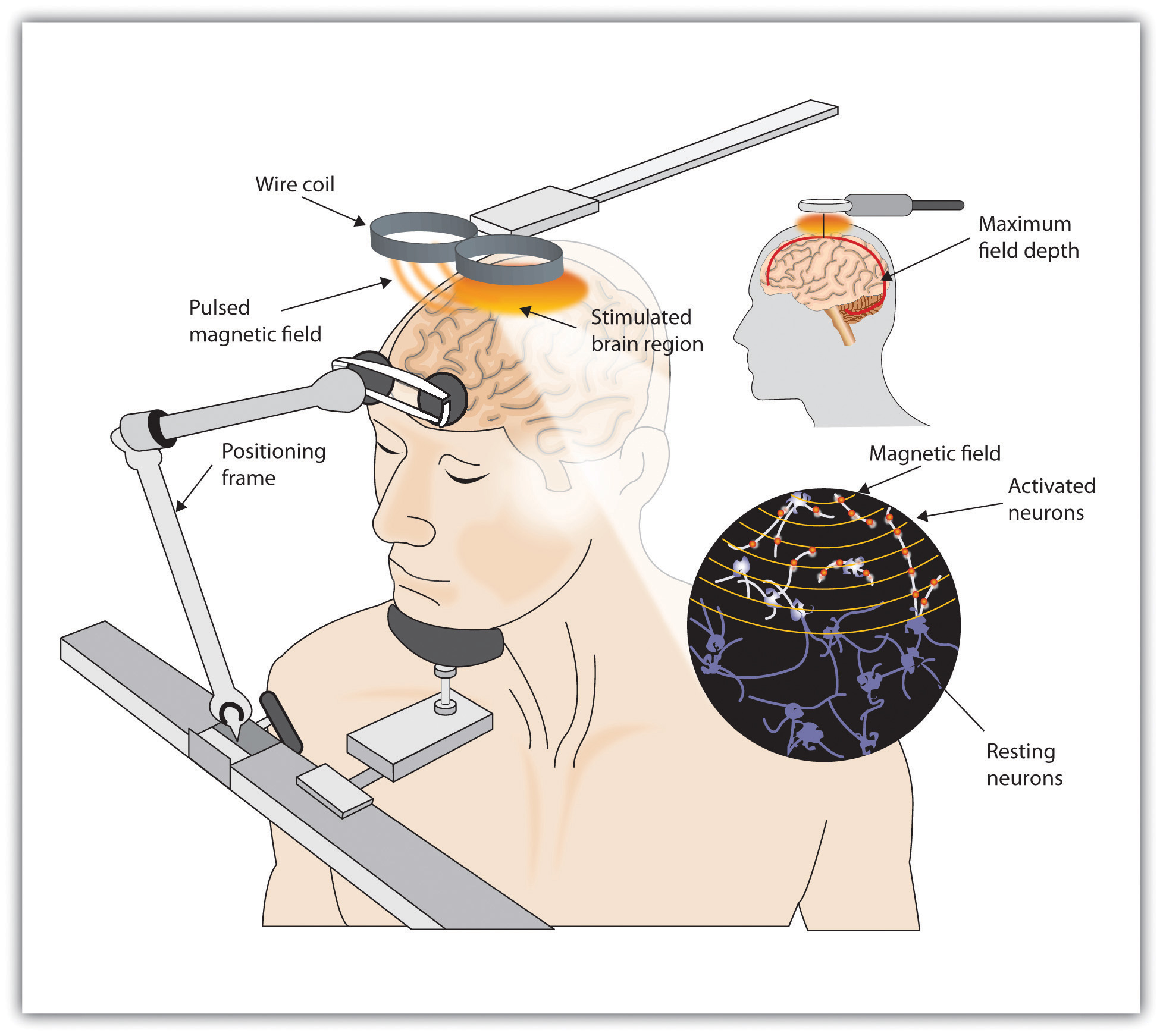 "A TMS device is depicted in a drawing alongside a persons head and torso. The person is resting their head on a metal chinrest connected to a base. From the base is an arm labelled ""positioning frame"", which leads to a padded bar in front of the person's head. A metal bar above the person's head has two flat circular pieces at the end labelled ""wire coil"". The drawing shows an internal view of the person's head depicting their brain, which has the label ""stimulated brain region"" at the point below the wire coil, as well as a depiction of the ""pulsed magnetic field"" with wavy lines to indicate movement. To the right of this image is a smaller depiction of the magnetic field as symbolized by parallel wavy lines intersecting with a depiction of activated neurons. Below the magnetic field are resting neurons."