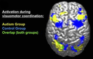 """fMRI-derived image of difference between brains of autistic and control groups. Legend reads """"Activation during visuomotor coordination: Autism Group [yellow], Control Group [Blue], Overlap (both groups) [green]""""."""